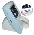 Sonostar CareScan-1 Portable Ultrasound Bladder Scanner